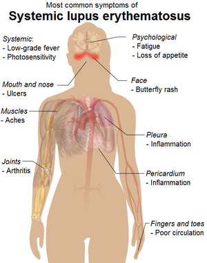 Common signs and symptoms of systemic lupus er...
